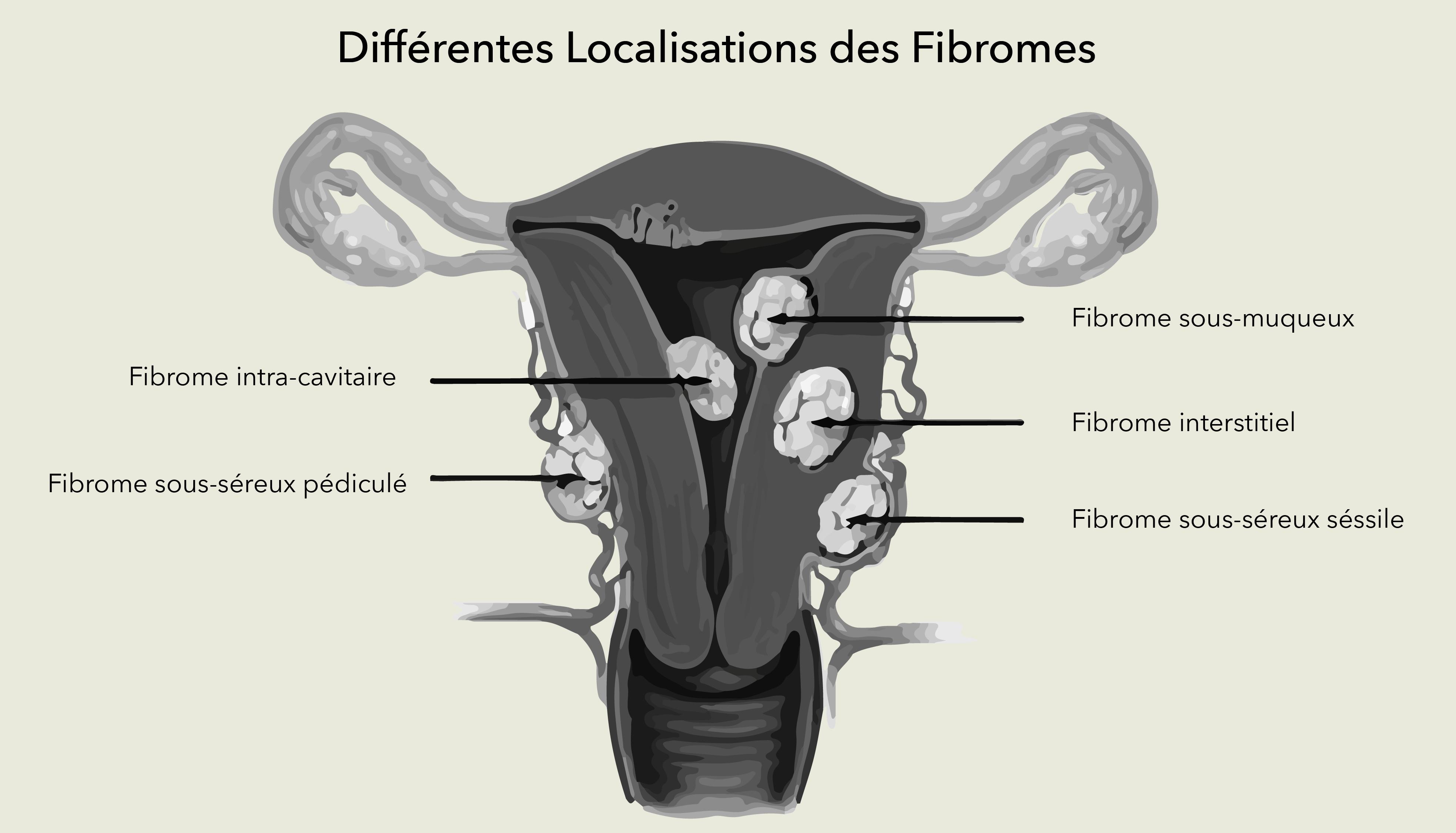 Chirurgie des fibromes utérins Dr Olivier Marpeau