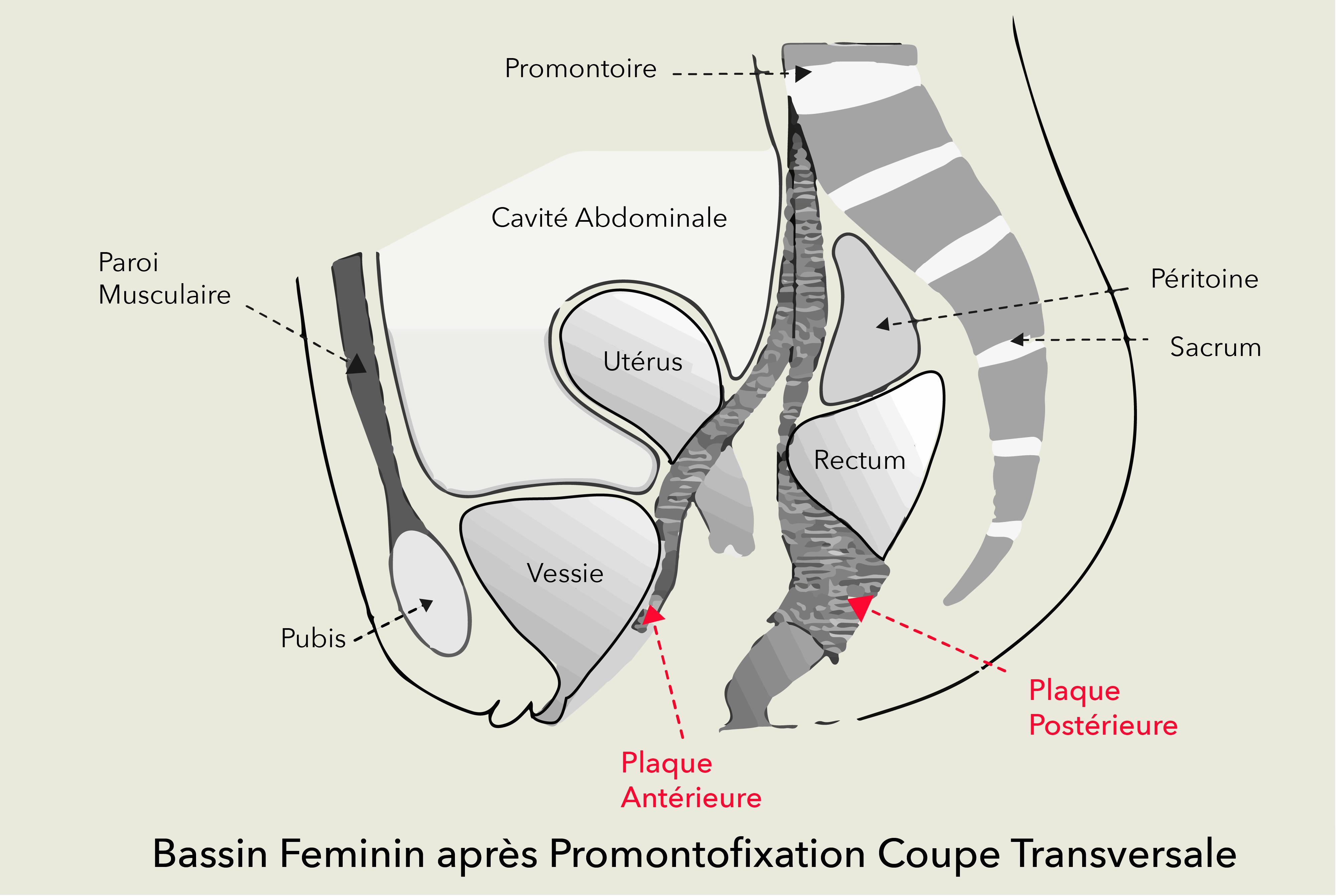 Descente d'organes Dr Olivier Marpeau