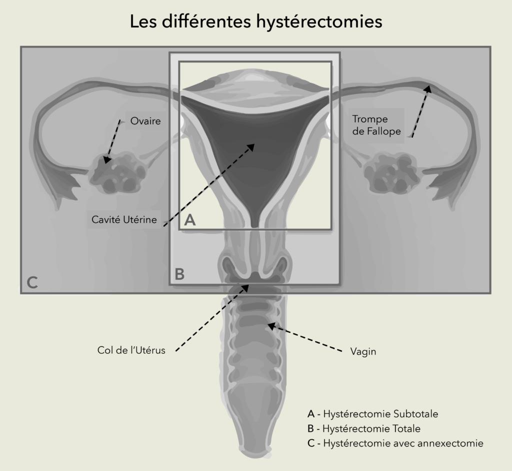 Hystérectomies Dr Olivier Marpeau