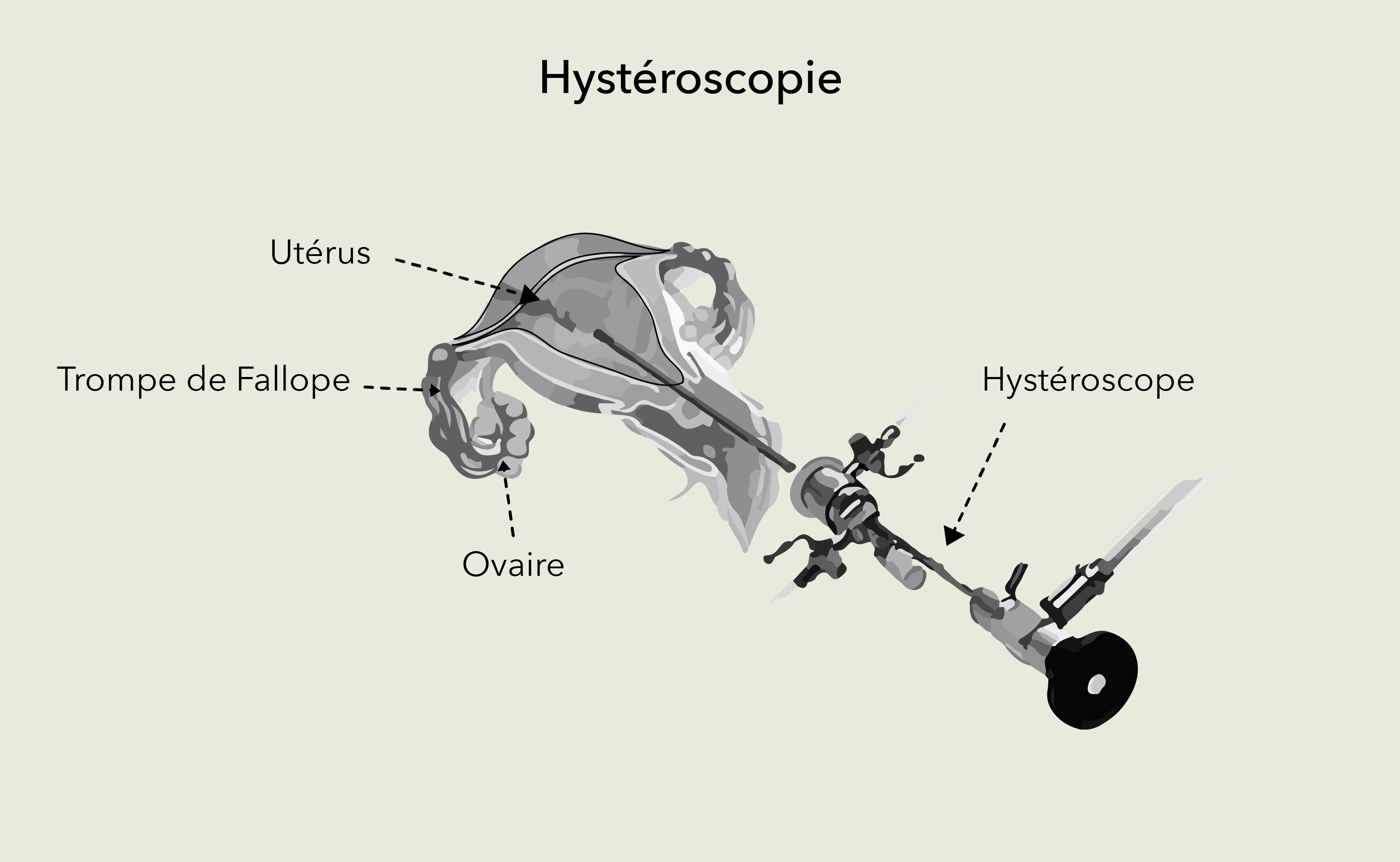 Hystéroscopie Dr Olivier Marpeau